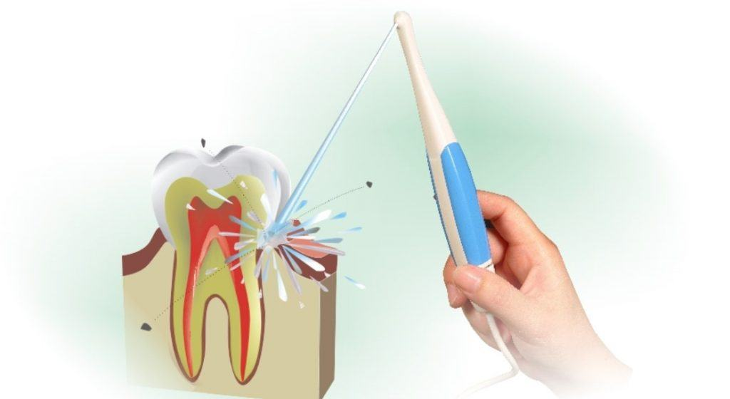 Limpieza bucal con irrigador dental